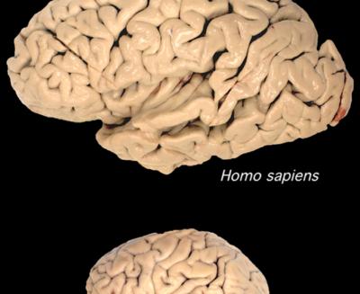 In copie di geni il segreto delle dimensioni del cervello umano